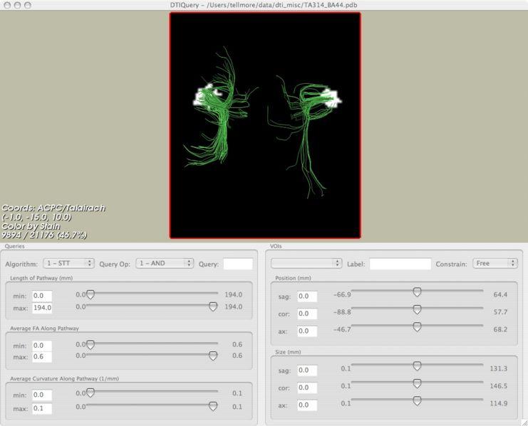 File:TA314 editcheckmode2.jpg