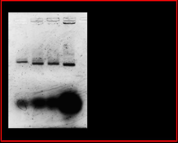 Fig.5 electrophorese2