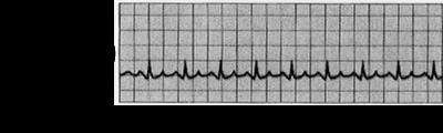 Tachycardia ECG S11.png