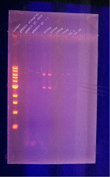File:DNA gel.jpg