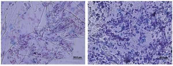 Fig. 3: Alcian blue staining of cartilage construct comprising a PEG hydrogel seeded with MSCs, after 4 weeks of culture (GAG stained blue, nuclei stained red). (left) Blank hydrogel containing TGF-b3; (right) hydrogel containing triple-helical (GPO)4GFOGER(GPO)4GCG sequence and TGF-b3. Construct containing GPO)4GFOGER(GPO)4GCG produced an abundance of cartilage-specific ECM rich in GAG[13].