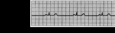 Bradycardia ECG S11.png