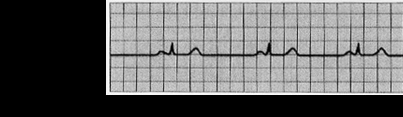 File:Bradycardia ECG S11.png