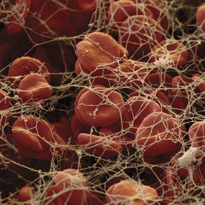 Red blood cells in fibrin[10]