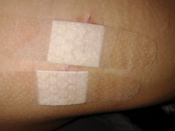 Self removed stitches and pictures