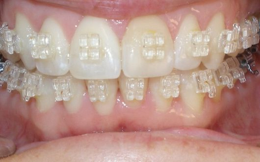 Adult Clear Braces Arroyo Grande, California