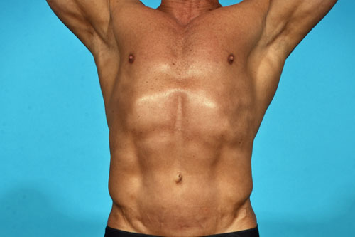 Abdominal Etching | The Men's Center For Aesthetics | Dr