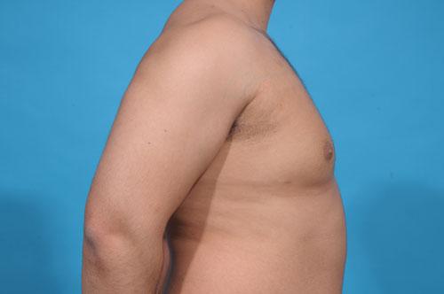 Gynecomastia