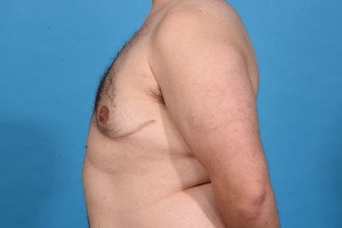 Gynecomastia Excision, VASER Liposculpting