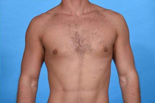 Gynecomastia Plus VASER Liposculpting and Lipocontouring