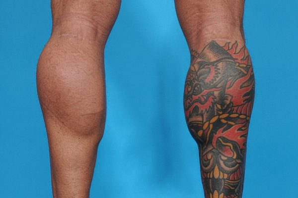 Calf Augmentation with Calf Implants