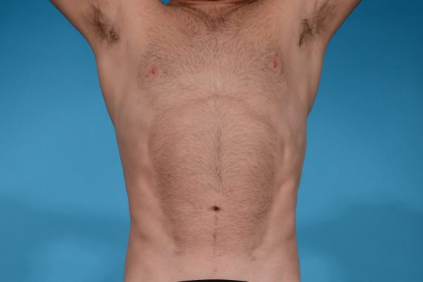 ABDOMINAL ETCHING WITH VASER HI-DEFINITION LIPOSCULPTING