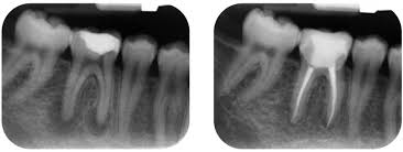 Dental Implant San Francisco, California