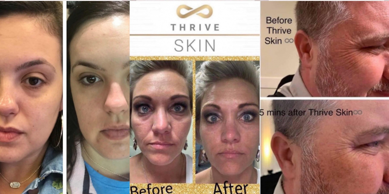 Thrive Skin Results