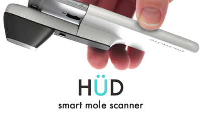 Hud_mole_scanner_20151223