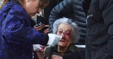 La vecina en momentos que era asistida por personal médico tras la caída. Los ladrones la empujaron.