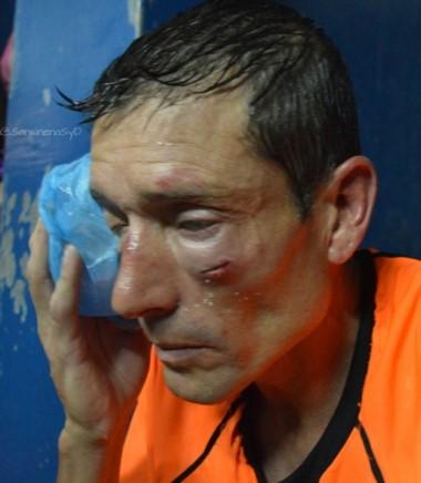 La foto de la barbarie. Así quedó el rostro del árbitro Elichiri.