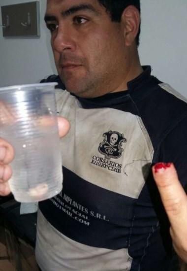 Víctor Macías del rugby mordió a Daniel Contreras, jugador de Corsarios y le quitó un pedazo de su dedo.