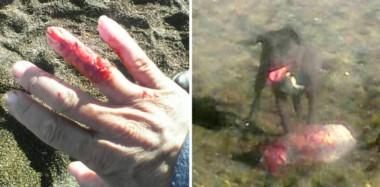 La dueña del caniche quiso separar al perro pitbull que atacaba a su animal y también recibió una mordedura.