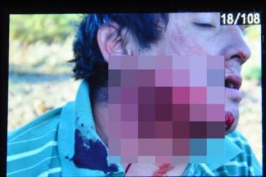 Sangre. Quien sería el hermano de Facundo Jones Huala recibió un balazo en la zona del cuello.