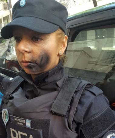 El rostro de la oficial de la Federal pintado con aerosol a manos de un manifestante. La mujer tuvo que ser asistida por irritación en uno de sus ojos.