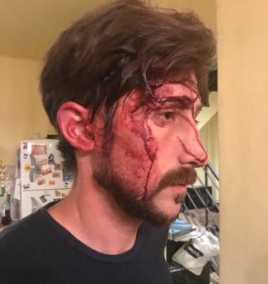 Atacaron al concejal Hernán Letcher. Lo golpearon y lo amenazaron anoche en su casa