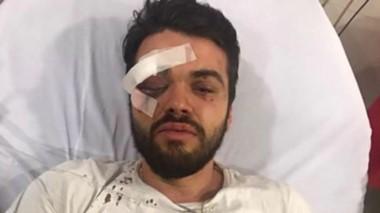 Detuvieron a cuatro jóvenes que atacaron a un rugbier gay.
