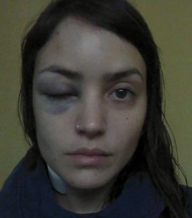 Cristina Alemandi tuvo que denunciar su brutal ataque sexual en Facebook porque la Justicia no le dio respuestas.