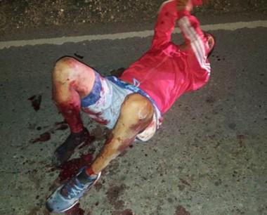 El individuo se encontraba herido en sus dos piernas y en una mano.