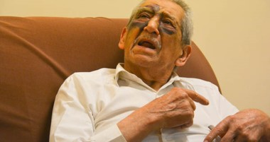 El rostro de don Abdón Manllauix es un fiel testimonio de lo que fue la agresión y caída que sufrió.