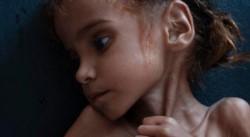 La niña de siete años cuya fotografía dio la vuelta al mundo como símbolo de la tragedia humanitaria que vive Yemen, murió este jueves.