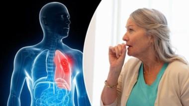 """""""Los pulmones trasplantados pertenecían a una mujer de 57 años que había fumado un paquete de cigarrillos diario durante 30 años"""""""