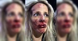 Brutal! Así quedó el rostro de la médica tras la violenta agresión.