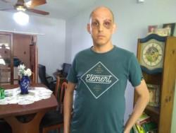 Como consecuencia del ataque el joven terminó con el tabique roto, los ojos morados y hematomas en todo el cuerpo.