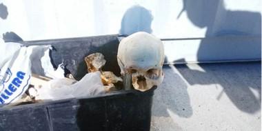 Más del 70% de los huesos corresponden a un ser humano: cabeza y extremidades: vértebras y costillas.