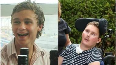 Sam Ballard tenía 19 años en 2010 cuando se tragó la babosa, que portaba el parásito de la lombriz Angiostrongylus cantonensis, comúnmente conocido como gusano pulmonar de rata.