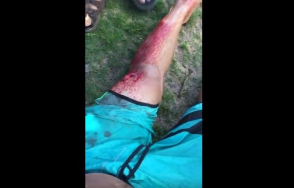 La pierna del argentino sufrió serias heridas pero no de gravedad.