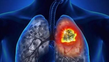 La Administración Nacional de Medicamentos, Alimentos y Tecnología Médica (ANMAT) aprobó un medicamento inmuno-oncológico para su uso combinado con quimioterapia.