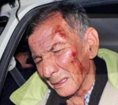 Lencinas, con gestos de dolor tras ser golpeado. (Foto: Radio 3)