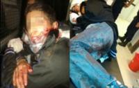 La policía solo tuvo que recorrer el rastro de sangre que dejaron los delincuentes para atraparlos.