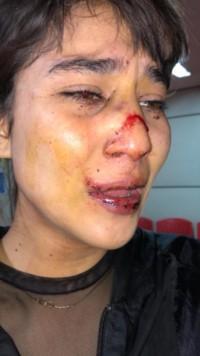 Florencia subió las fotos de sus golpes a las redes sociales.