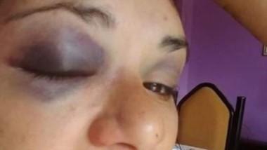 Victoria mostrando las secuelas de la agresión que le hizo su expareja