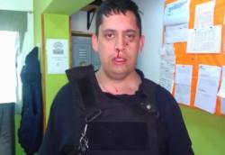 El agente herido debió ser atendido en un centro asistencial.