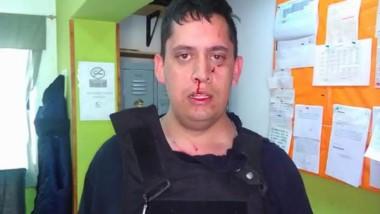 Así le dejaron la cara al Policía que intentó poner en orden la situación