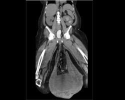 Tomografía que muestra el descomunal tamaño de los testículos del paciente.