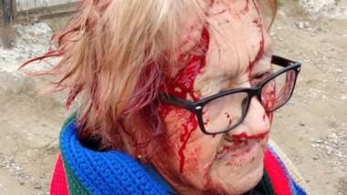 Amelia Cheuque, de 88 años, con los rastros de las heridas recibidas.