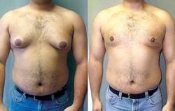 Nicholas Murray, ahora de 26 años, alegó que le crecieron los senos después de que sus médicos comenzaran a recetarle Risperdal.