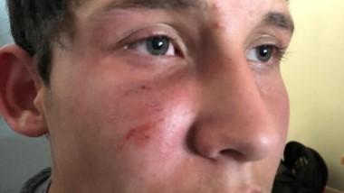 Mauro Guerrero, el jugador de Brown agredido el viernes.