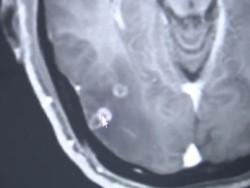 El cerebro de Zhu Zhong-fa estaba infectado de parásitos.