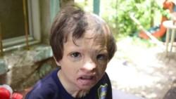 La vida se ensañocon Aaron, el pequeño que sufrió graves quemaduras en un incendio y que perdió a su mamá de cáncer.